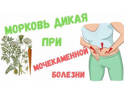 Насіння дикої моркви при сечокам'яній хворобі